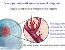 Геморрагический инсульт  левой стороны – причины, лечение, прогноз