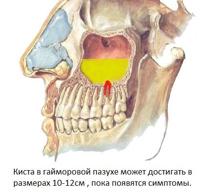 Зубная киста в гайморовой пазухе