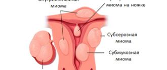 Виды миомы матки, зависимо от расположения