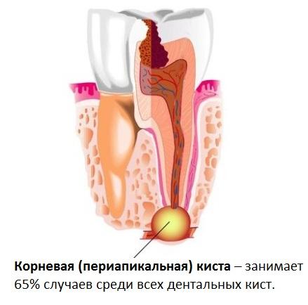 Зубная корневая (периапикальная) киста