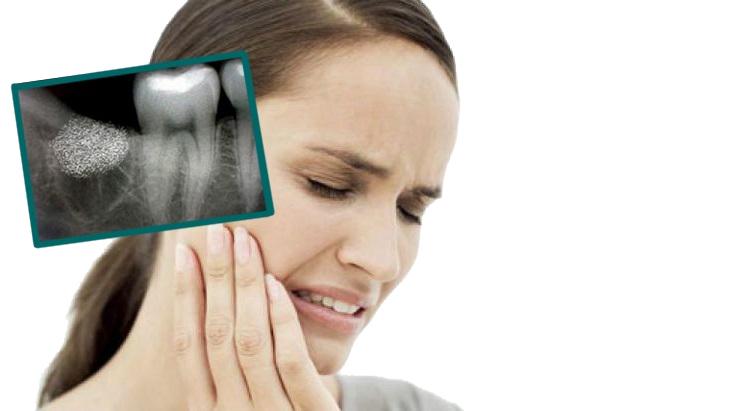 Лечение при раздраженном кишечнике