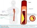 Атеросклероз (склероз) аорты: симптомы, причины, лечение