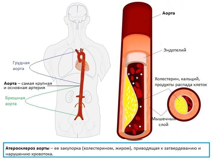 Атеросклероз аорты сердца – что это такое?
