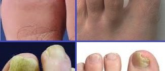 Дерматомикоз ногтевой пластины