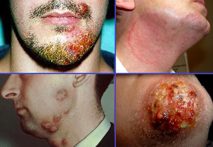 Дерматомикоз на усах и бороде