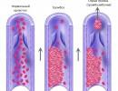 Что такое тромб и почему он отрывается?