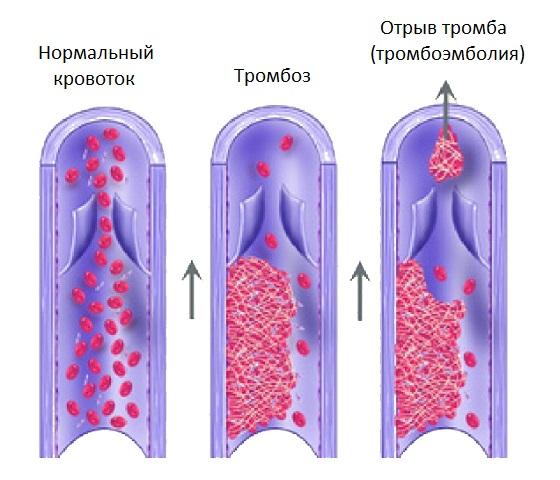 Процесс образования и отрыв тромба