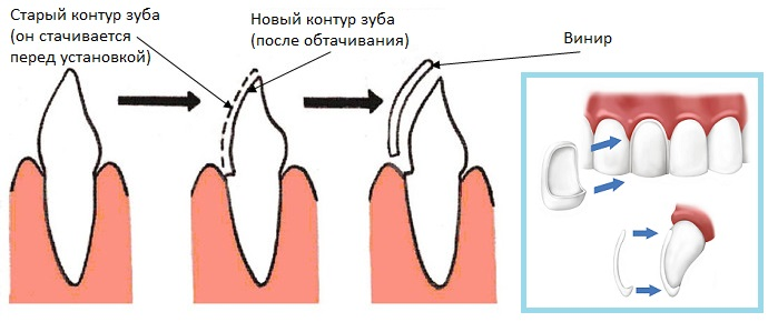 Парцелановые зубы что это такое