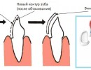 Виниры на зубы: виды, цены, преимущества, недостатки, фото