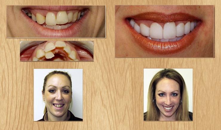 Виниры для зубов цена нижнекамск
