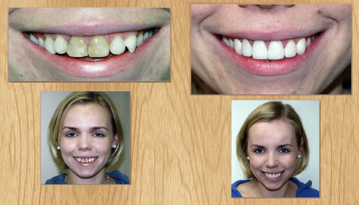Фото до и после установки винир
