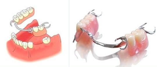 Что представляет собой съемное протезирование зубов при помощи бюгельного протеза