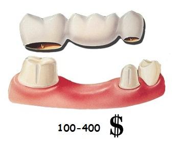Цена за один зуб при установке мостовидного протеза
