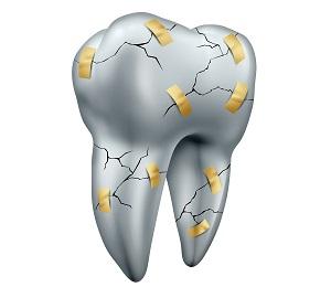 Поврежденная зубная эмаль