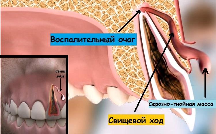Свищ зуба на десне – вид спереди и сбоку