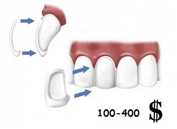 Цена за протезирование одного зуба при помощи виниров и люминиров