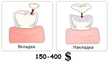 Цена за один зуб при установке вкладок и накладок