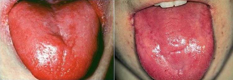 Покраснения языка при пернициозной анемии