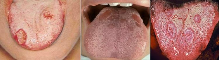 Красные пятная на языке при сифилисе