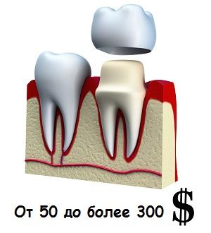 Цена за один зуб при установке зубной коронки