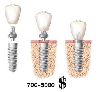 Цена за протезирование одного зуба при помощи импланта