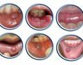Пузырь на внутренней стороне губы – причины и лечение