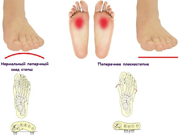 Поперечное плоскостопие симтомы и лечение диагностика и профилактика
