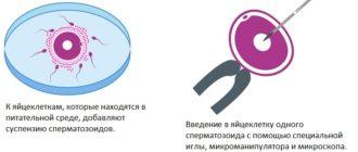 Сравнение обычного ЭКО и ИКСИ