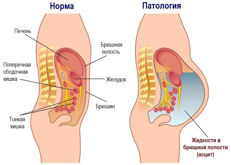 Схематическое изображение асцита