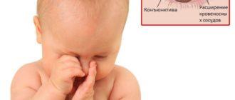 Конъюнктивит у грудного ребенка