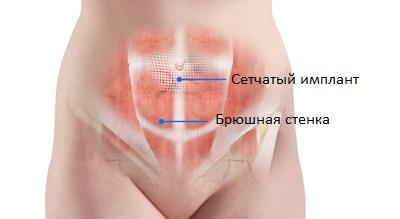 Открытая операция при пупочной грыже у женщин