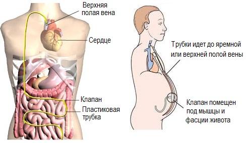 Перитонеовенозное шунтирование при асците