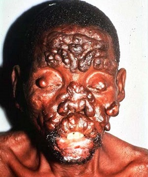 Обширные узлы на лице при лепре
