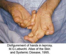 Повреждение рук при лепре