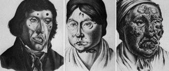 Старые рисунки симптомов проказы