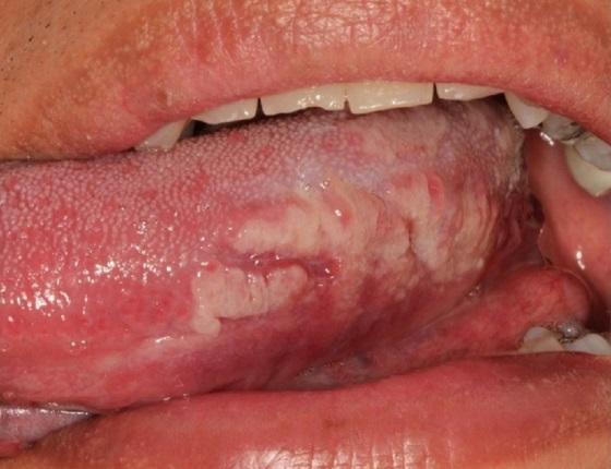 Сифилис на языке