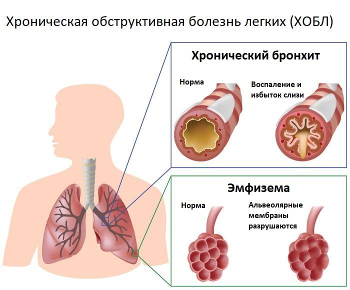 Хронический бронхит и эмфизема при хобл
