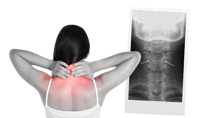 Дегенеративно-дистрофические изменения шейного отдела позвоночника у женщины