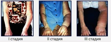 Стадии лимфостаза руки