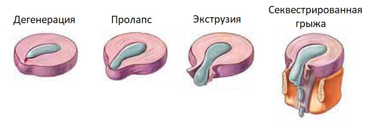 Стадии повреждения межпозвоночного диска