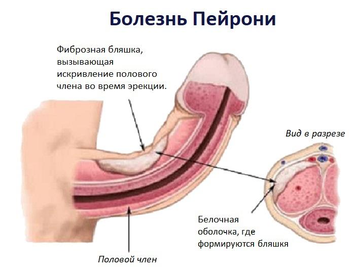 Природа болезни Пейрони