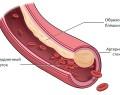 Гиперхолестеринемия – что это такое и чем опасна?