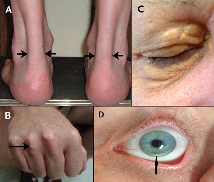 Визуальные признаки гиперхолестеринемии