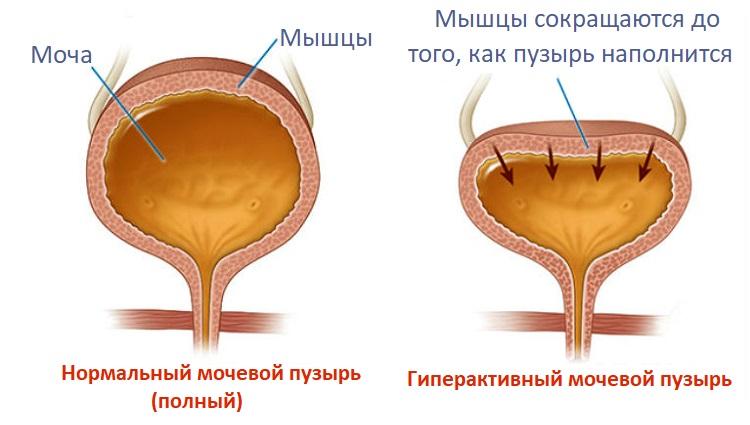 Гиперактивный мочевой пузырь у мужчин