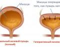 Лечение гиперактивного мочевого пузыря у женщин и мужчин