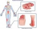 Псориатический артрит – симптомы и лечение