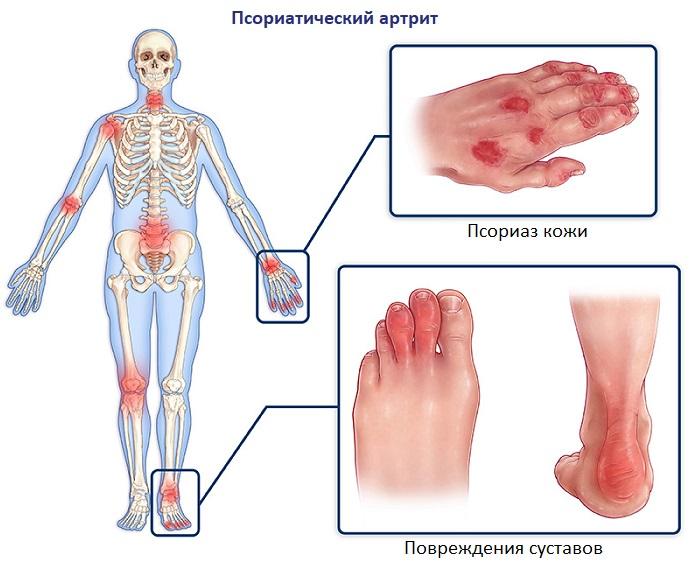 Артрит ног симптомы лечение и фото суставов