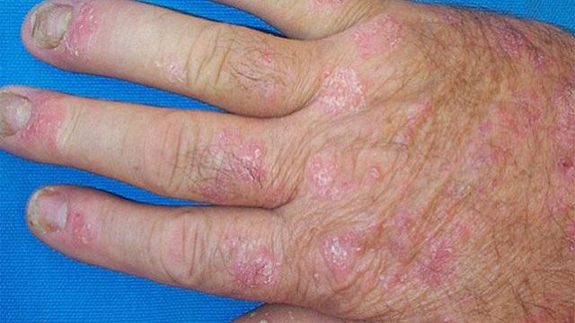 Псориатический артрит  на кисти