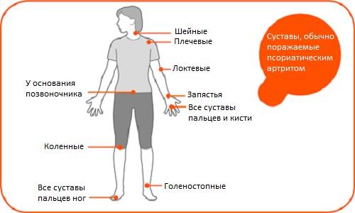 Суставы, поражаемые псориатическим артритом