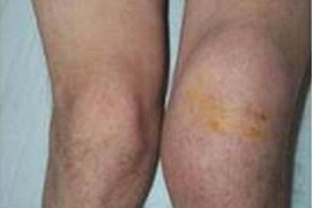 Артрит коленного сустава при бруцеллезе